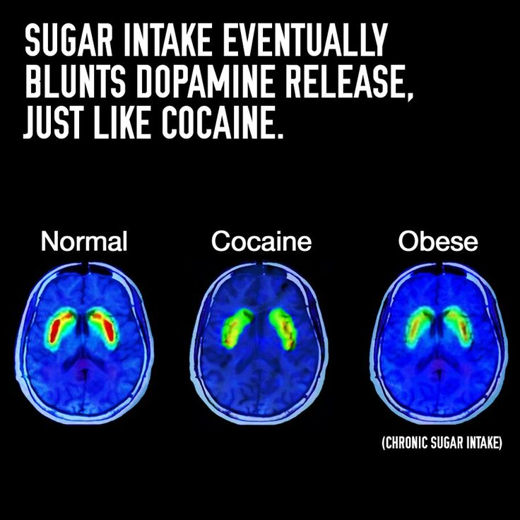 Sugar Intake Dopamine Brain